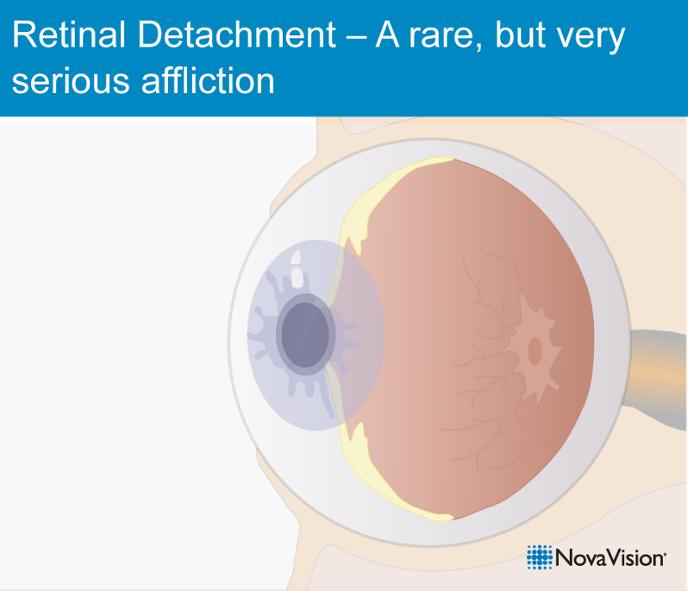 Retinal Detachment – A Rare, But Very Serious Affliction