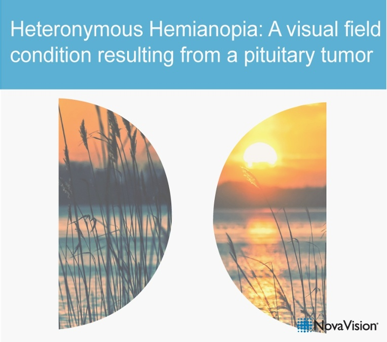 Heteronymous Hemianopia: A Visual Field Condition Resulting From A Pituitary Tumor