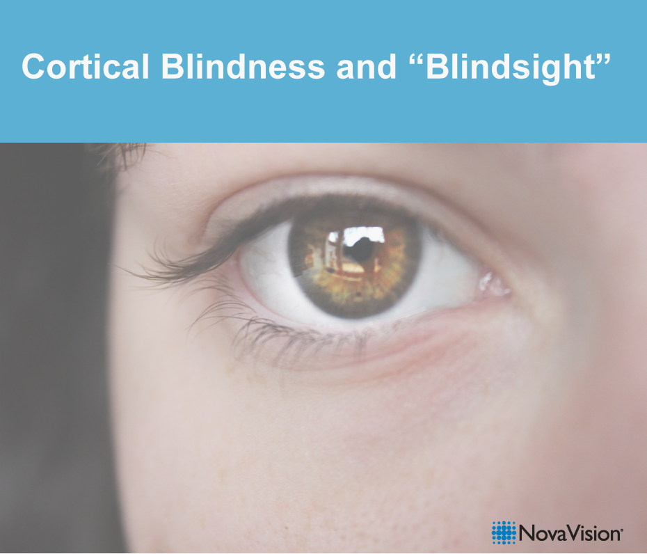 "Cortical Blindness And ""Blindsight"""